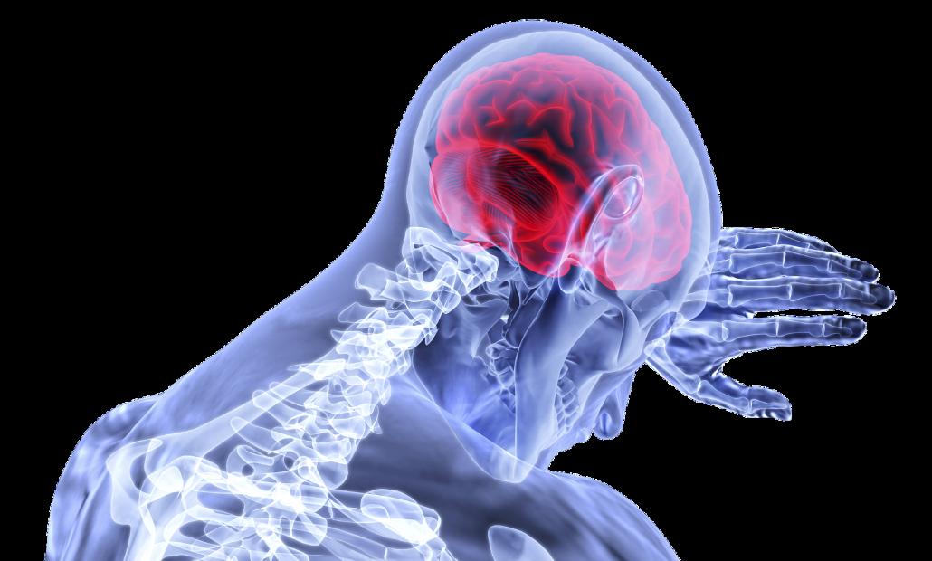 CBD bei Entzündungen, ein Körper der sich an den Kopf fasst und wo das Gehirn rot leuchtet.